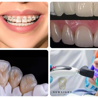 New Light Dental Clinic   Beauty