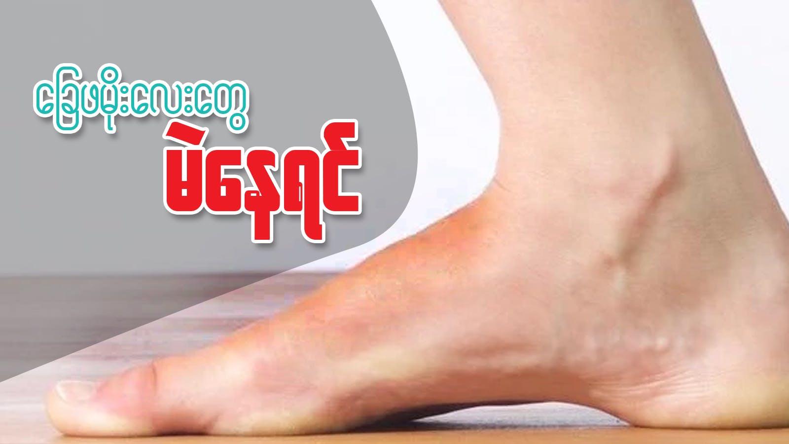 ခြေဖမိုးလေးတွေ မဲနေလို့ စိတ်ညစ်နေလား